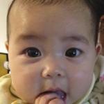 小児アトピー 三ヶ月後